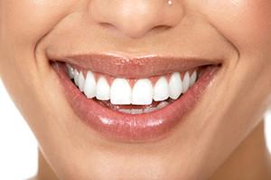 teeth whitening scottsdale
