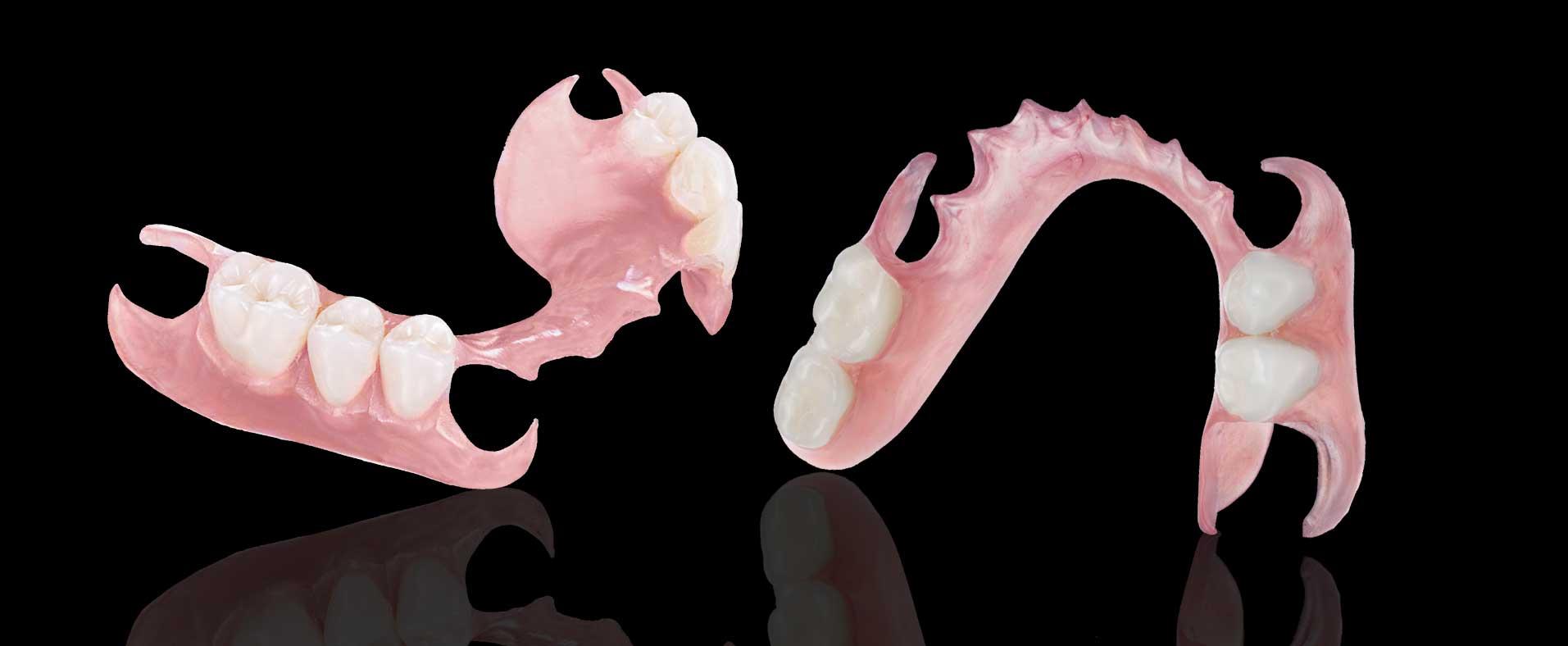 valpast partial denture