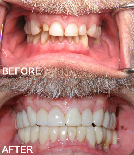 full mouth restoration arizona