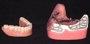 Metal Dental Implant