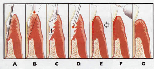 laser gum treatment az