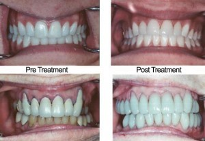 cosmetic dentistry az