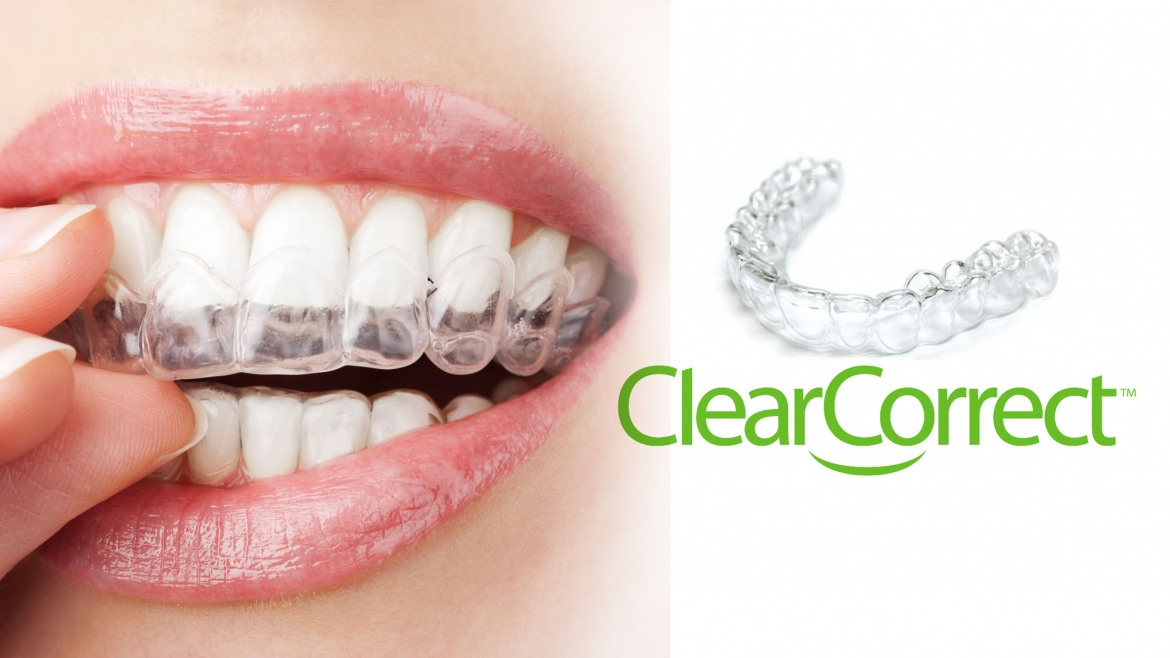 ClearCorrect®