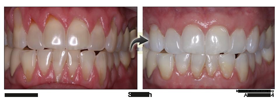 non surgical gum recession treatment